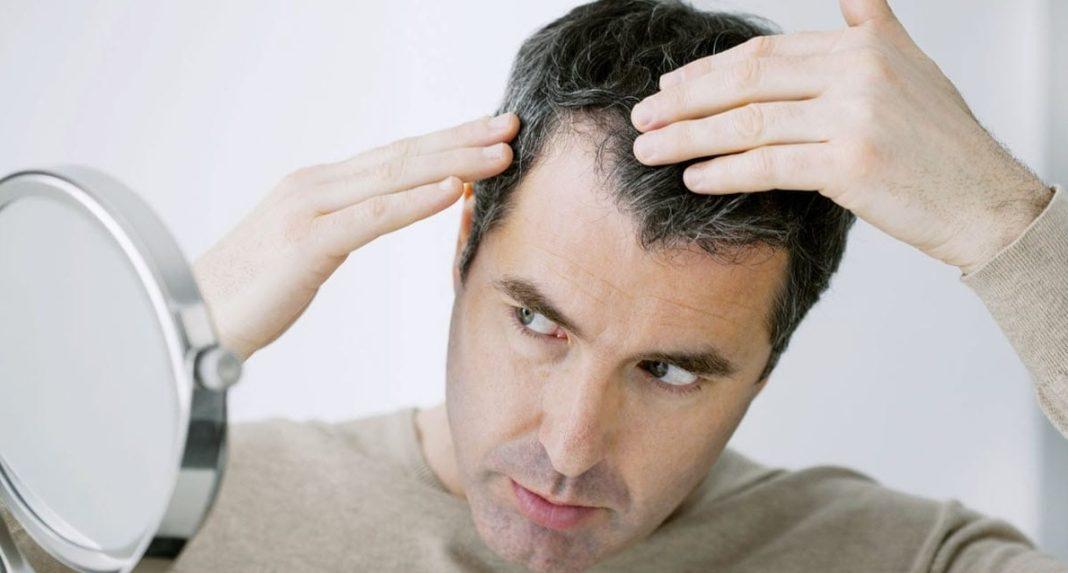 Homme cheveux
